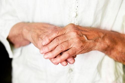 Артроз приводит к деформациям пальцев