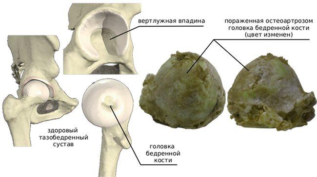 Артроз тазобедренного сустава - иллюстрация
