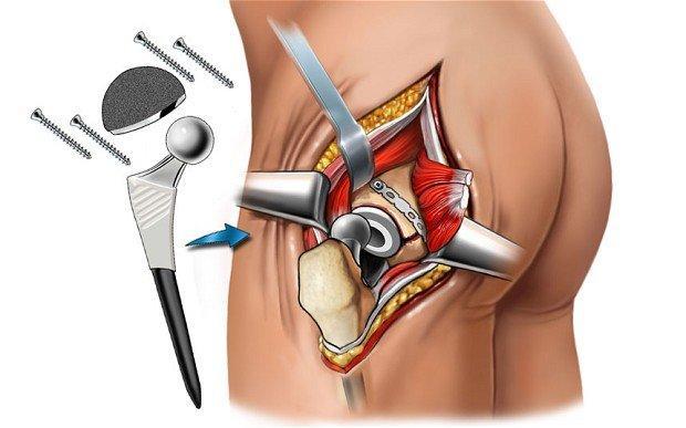 Артроз тазобедренного сустава 3 степени и оперативное лечение
