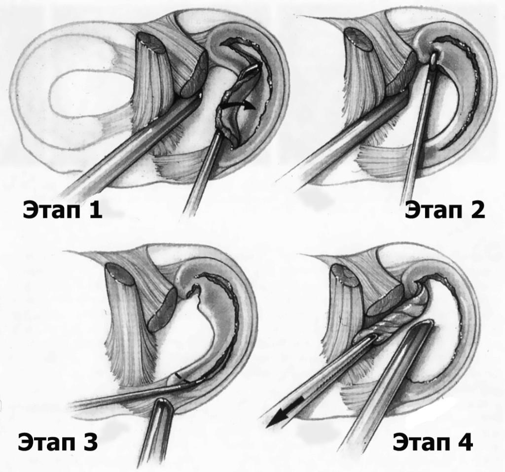 Артроскопия