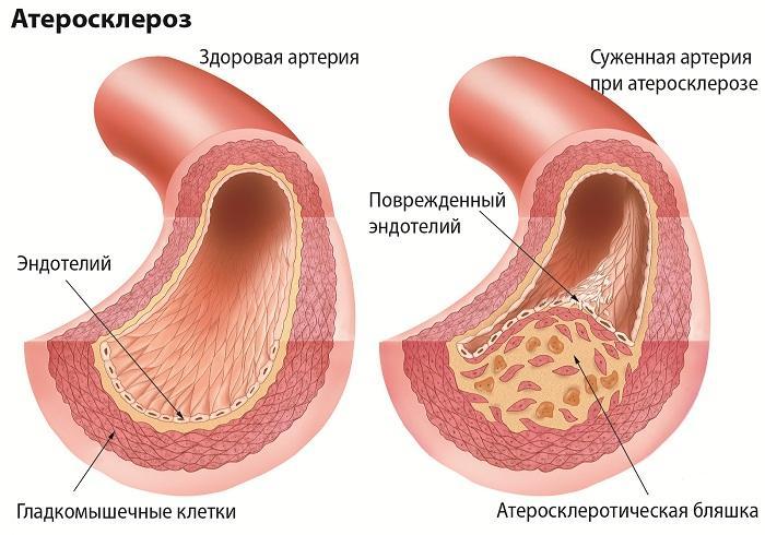 Атеросклероз сосудов нижних конечностей, лечение