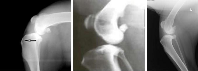 Рентгенологические признаки разрыва ПКС обусловлены смещением мыщелков большеберцовой кости вперед по отношению к бедренной кости