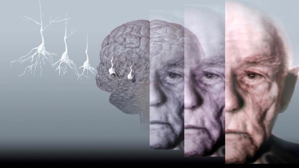 Болезнь Альцгеймера: начальные симптомы