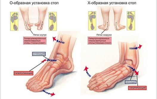Болезнь ноги — наличие плоской, опирающейся на всю подошву стопы, без выемки