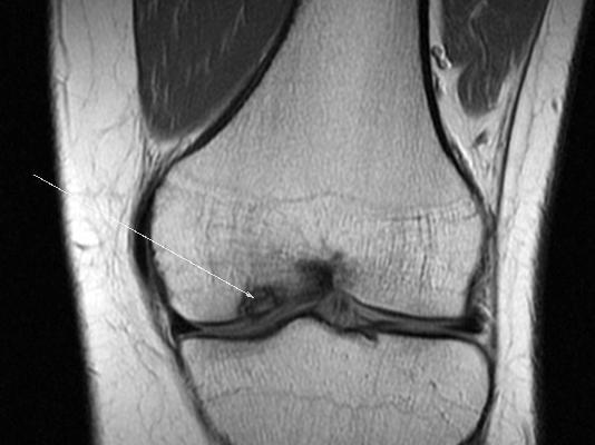 Боль обусловлена отделением хряща от кости внутреннего мыщелка бедра вследствие аваскулярного некроза