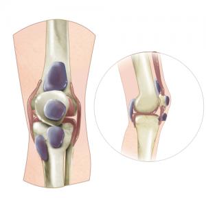 Бурсит коленного сустава - схема