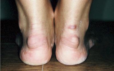 Бурсит пятки лечение