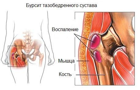 Бурсит тазобедренного сустава и его лечение