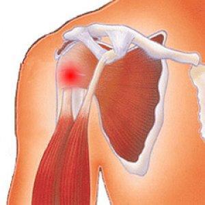 Воспаление сухожилий - тендинит