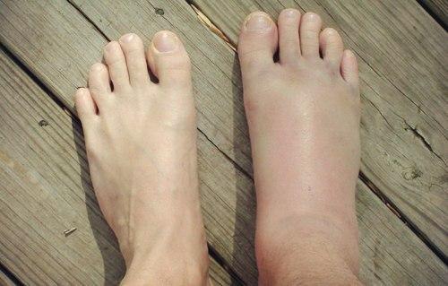 Вывих ноги в районе щиколотки