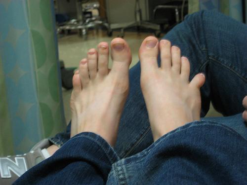Вывих пальца стопы