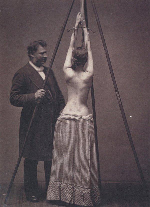 Доктор Льюис Сейр лечит сколиоз. Англия. 70-е года XIX века