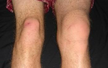 Задний вывих коленного сустава
