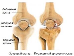 Здоровый и пораженный суставы