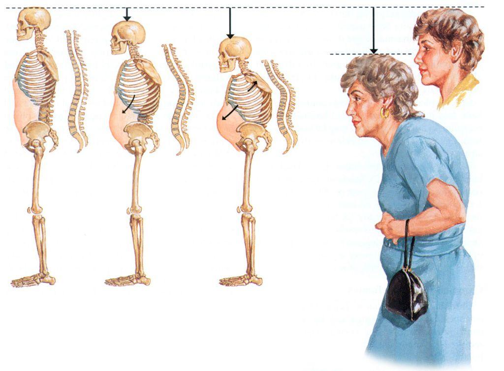Изменение роста и осанки при остеопорозе