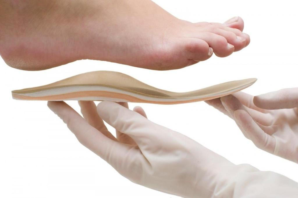 Индивидуальные ортопедические стельки