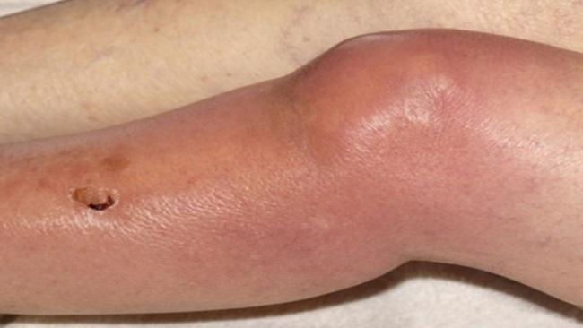 Инфекционно-аллергический артрит у детей