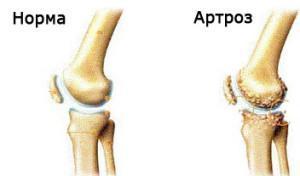 Как вылечить артроз колена