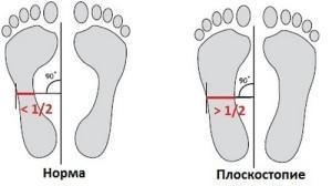 Как определить плоскостопие у детей