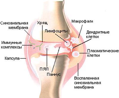 Коленный сустав с признаками синовита