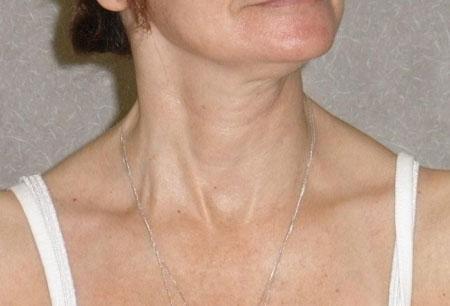 Кривошея характеризуется неправильным положением головы с ее наклоном вбок