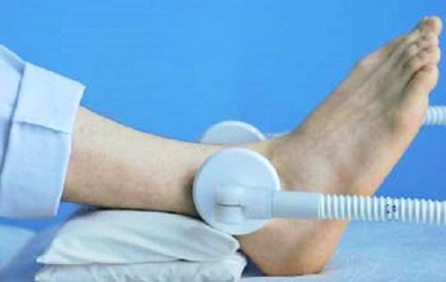 Лечение бурситов ахиллова сухожилия