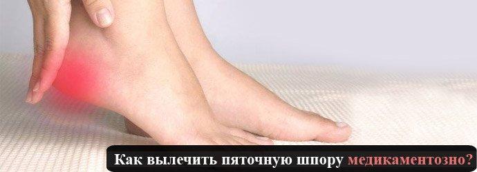 Лечение пяточной шпоры медикаментозно