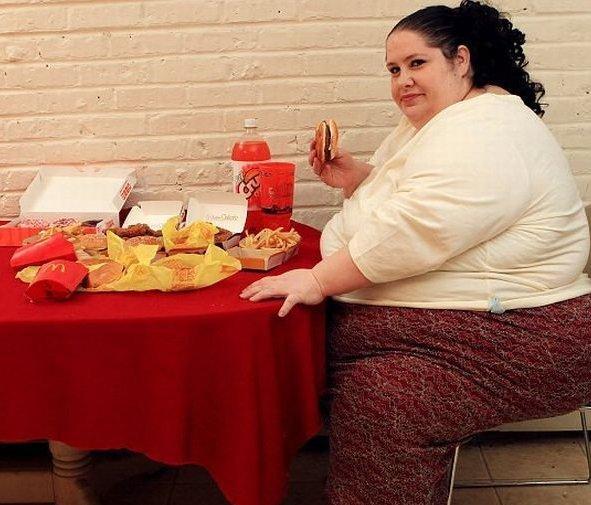 Лишний вес как причина плоскостопия
