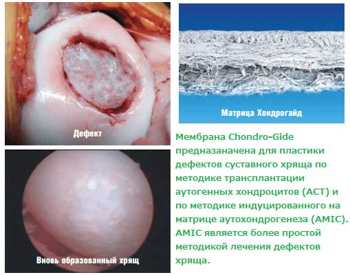 Мембрана Chondro-Gide