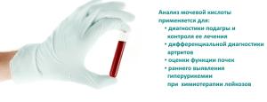 Мочевая кислота – показатель обмена пуринов, необходима для диагностики и контроля лечения подагры и других заболеваний