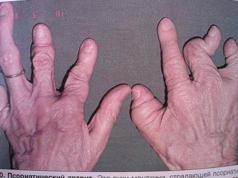 Мутилирующий полиартрит