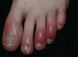На фото острый артрит суставов пальцев ног