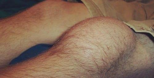 На фото пораженное бурситом колено
