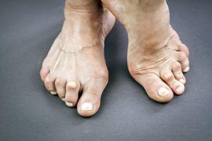 На фото ревматоидный артрит ног