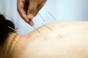 Нетрадиционные методы лечения – иглоукалывание при остеохондрозе