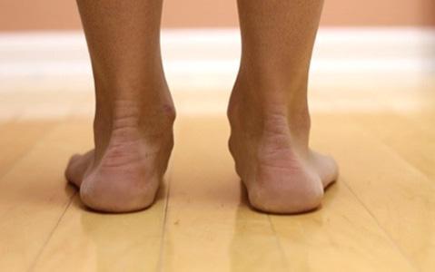 Ограничение подвижности при плоскостопии