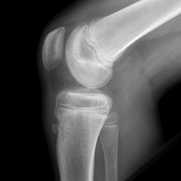 Осгуда — Шлаттера болезнь, рентгеновский снимок