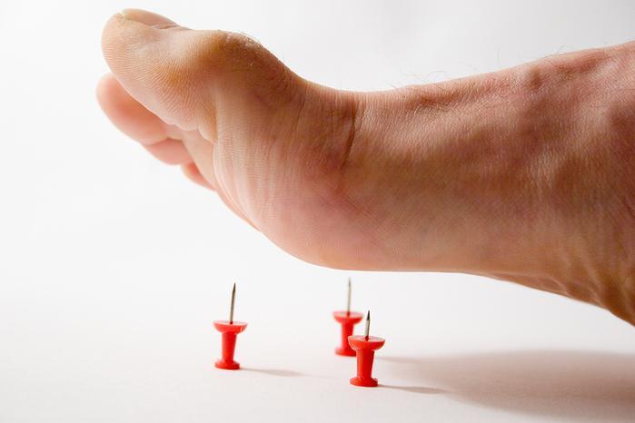 Осложнения продольного плоскостопия