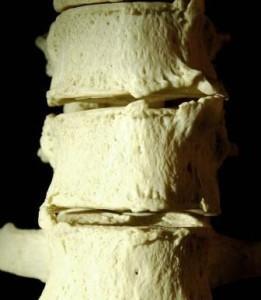 Остеофиты (костные отростки) позвоночника