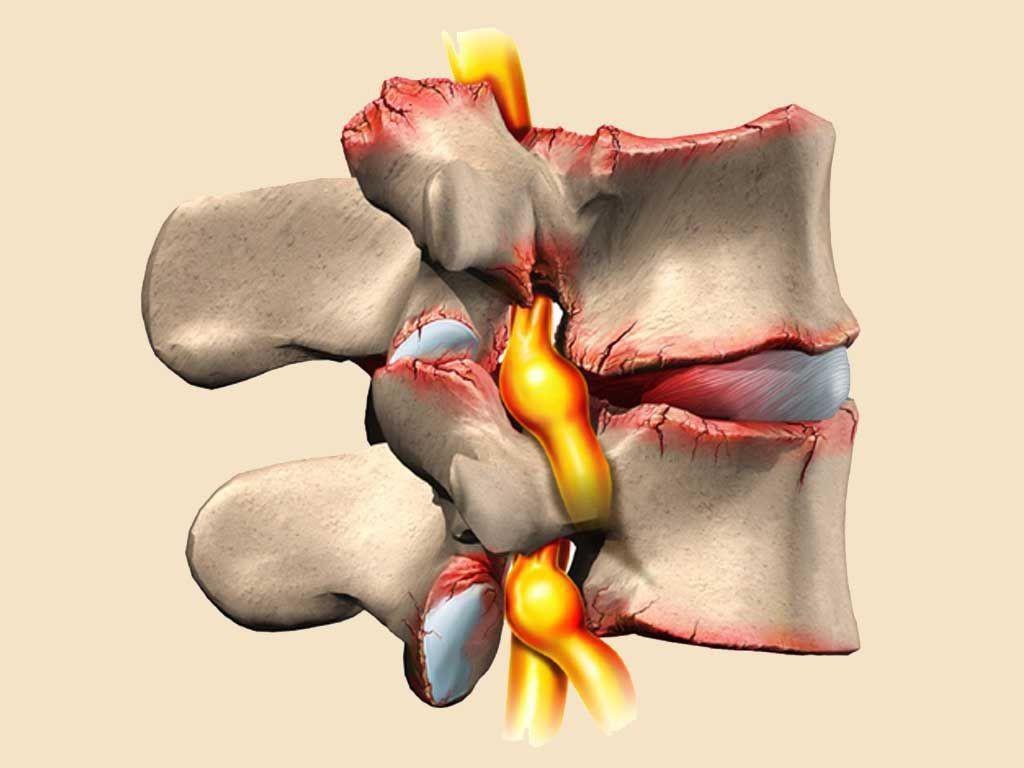 Остеохондроз как причина шейной мигрени