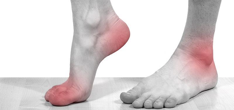 Острый подагрический артрит очень часто возникает внезапно и протекает стремительно
