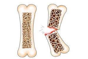 Перелом при остеопорозе