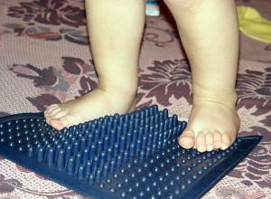 Плоскостопие у детей до трех лет - не патология