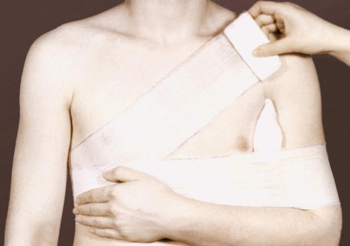 поможет вывих плеча как бинтовать фото жизнедеятельности паразитов