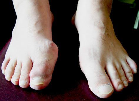 Подагрический артрит – симптомы и лечение, диагностика, препараты ...