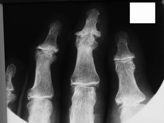 Полиостеоартроз, узелковая форма