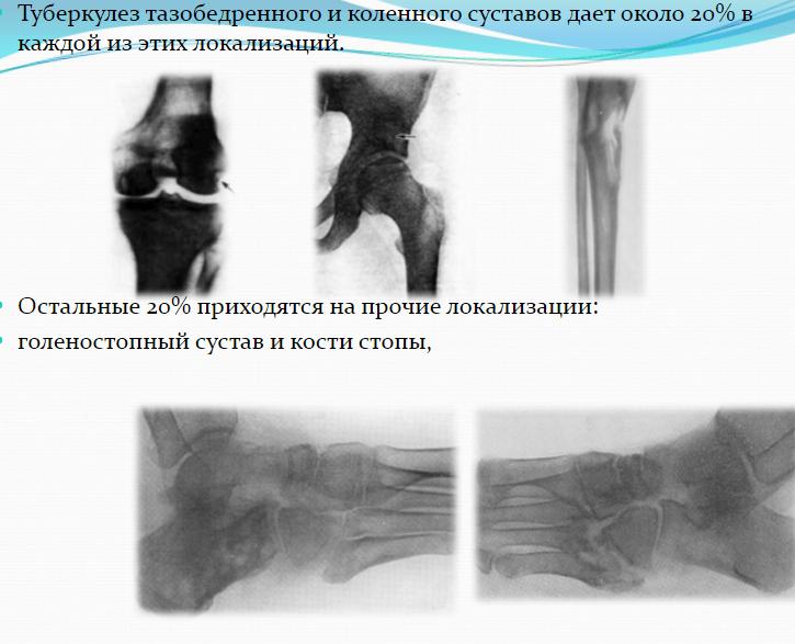 Поражение костей туберкулезом