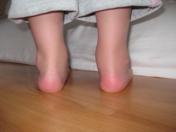 Пораженные суставы больные и припухшие