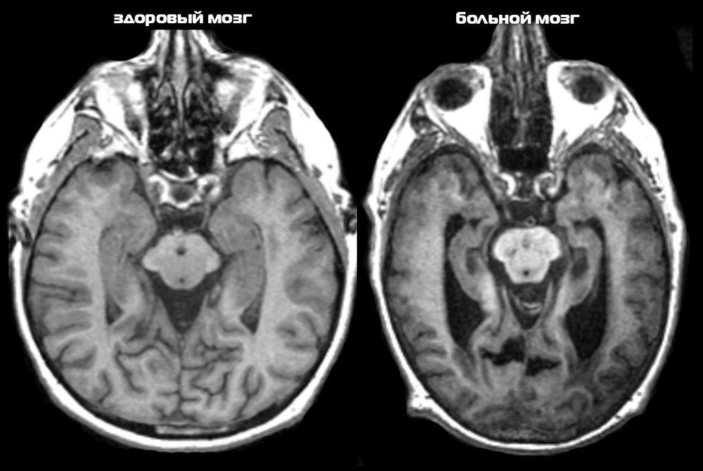 Признаки Альцгеймера на томографии