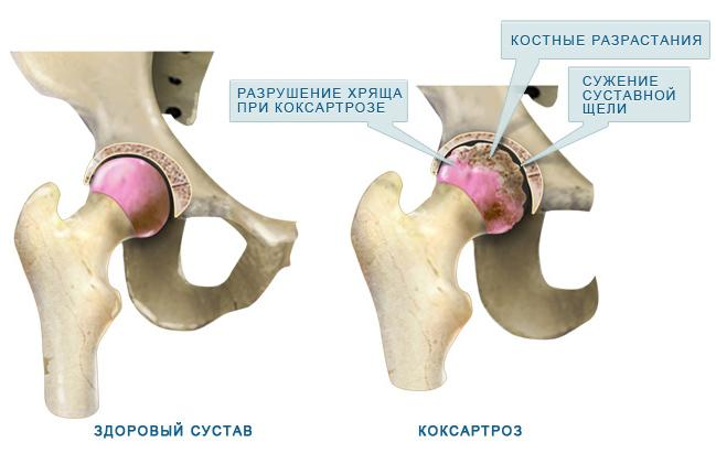 Пример строения здорового и больного суставов